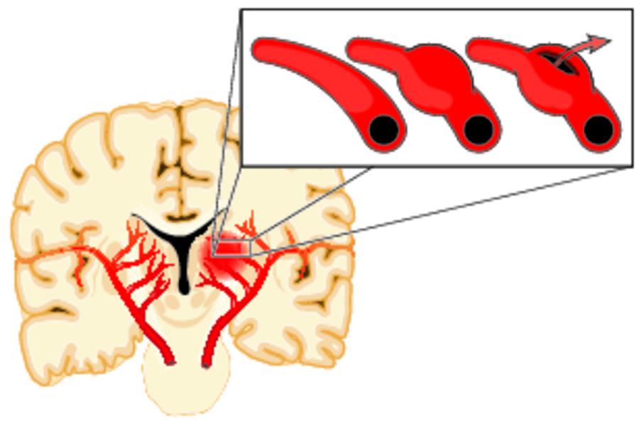 Аневризма сосудов головного мозга: диагностика, лечение, профилактика