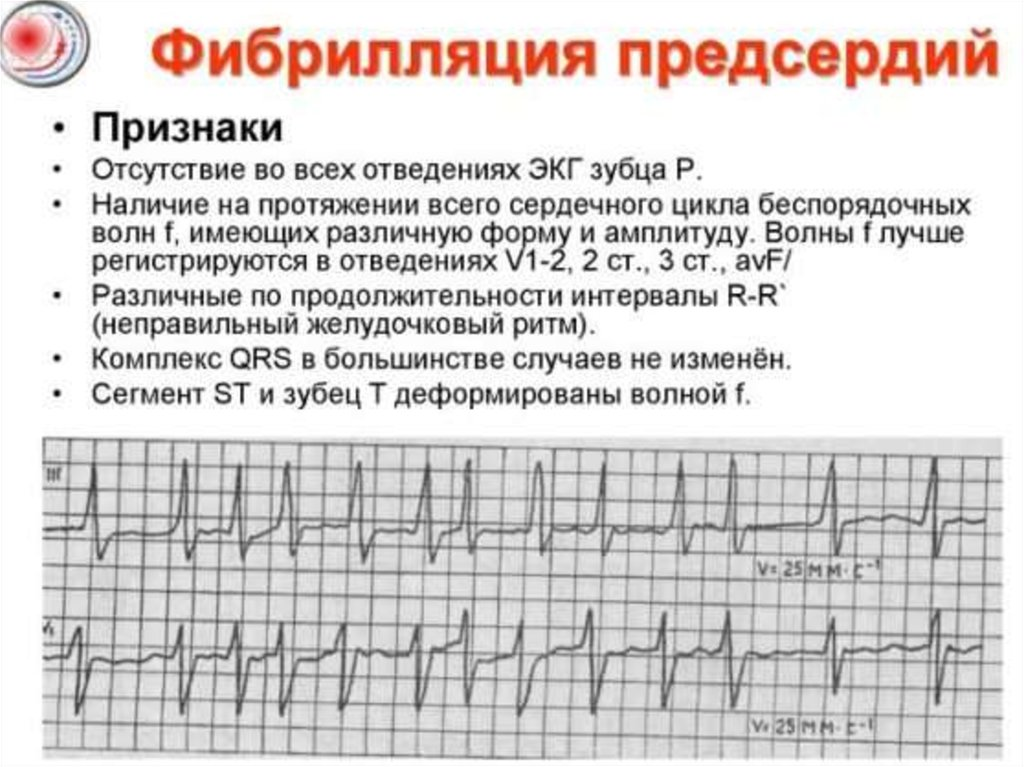 Радиочастотная абляция сердца: показания, осложнения — сердце