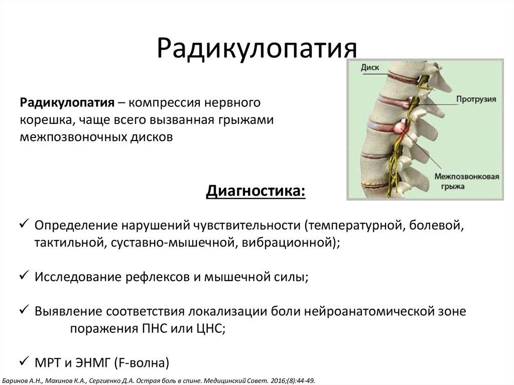 Люмбоишиалгия: причины, симптомы, диагностика, лечение