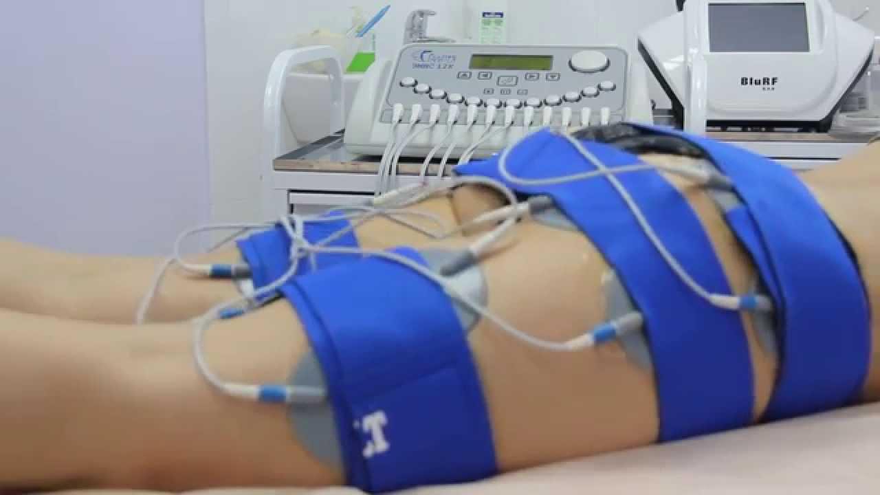 Минусы и плюсы применения миостимуляции тела: как проводится процедура