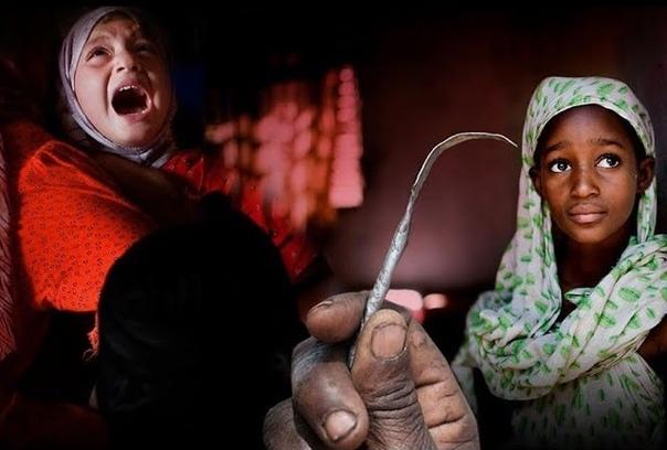 Женское обрезание: что нужно знать о калечащей операции