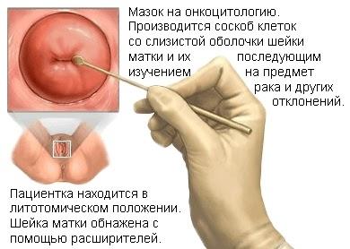 Мазок на цитологию: что показывает, когда сдавать, расшифровка / mama66.ru
