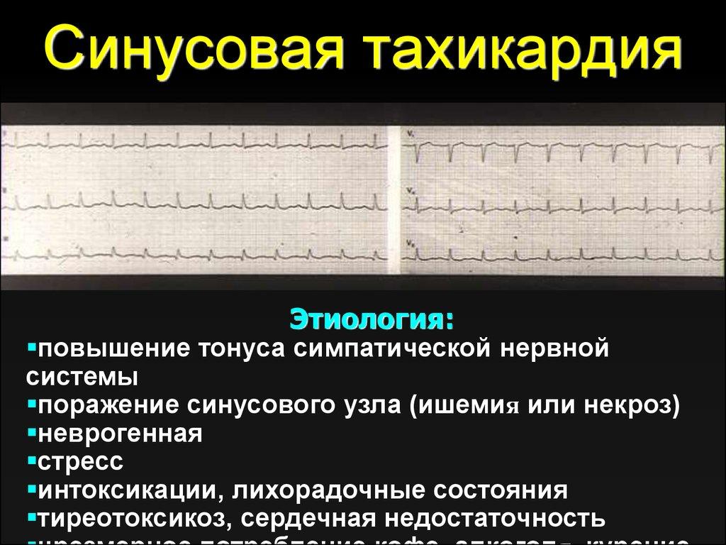 Чем опасна синусовая тахикардия сердца