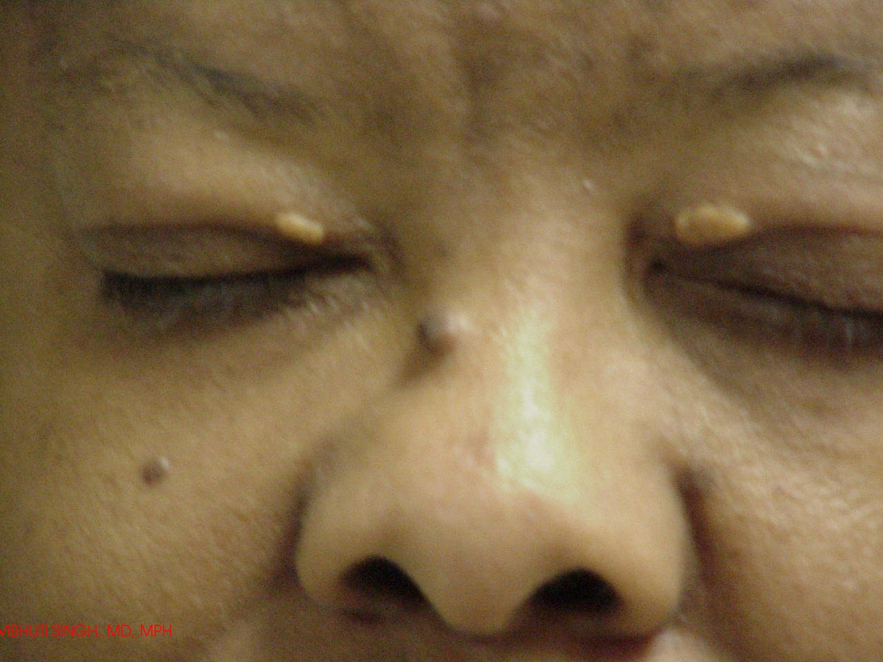 Гиперхолестеринемия что это такое симптомы лечение - ососудах