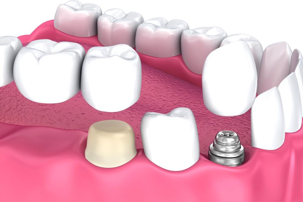 Зубные коронки: виды конструкций, установка, выбор лучших, фото до и после