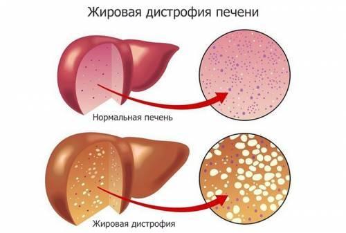 Паренхима состоит из. паренхима почки — что это такое и какие болезни ее поражают? что вызывает поражение паренхимы