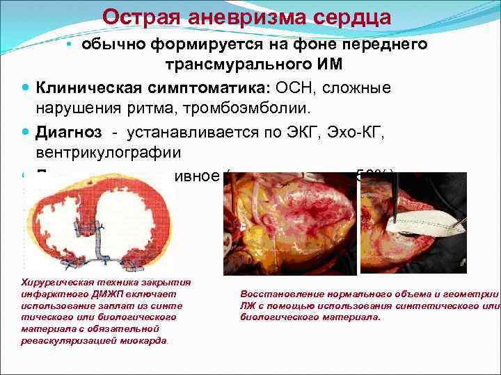 Аневризма сердца: причины, симптомы и лечение