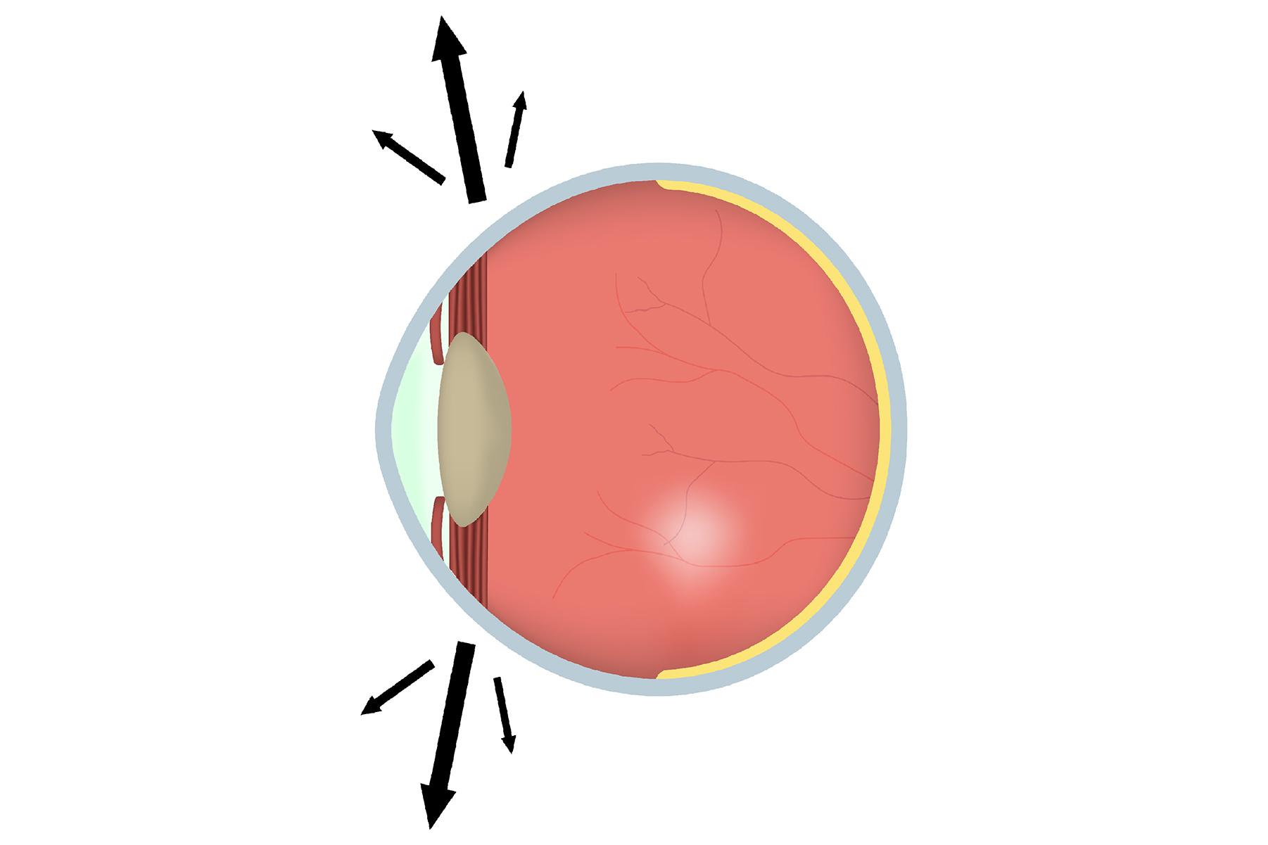 Нистагм: что это такое для глазных яблок, код болезни глаз по мкб 10, степени у взрослых, какова длительность синдрома в секундах
