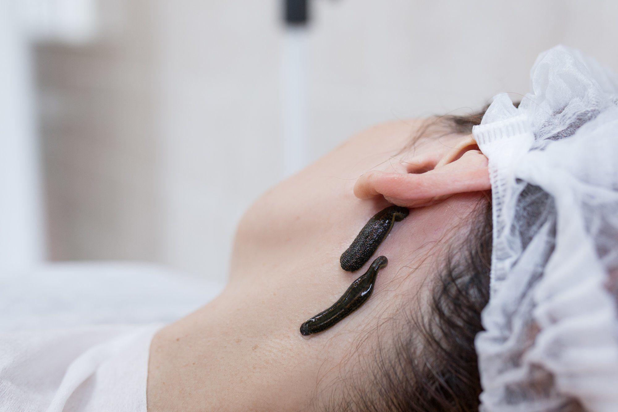 Гирудотерапия: польза и вред процедуры