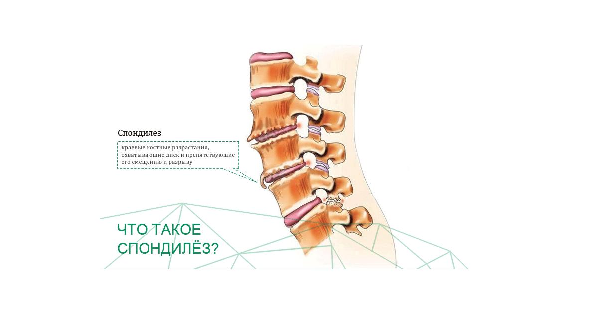 Как лечить спондилез пояснично-крестцового отдела позвоночника
