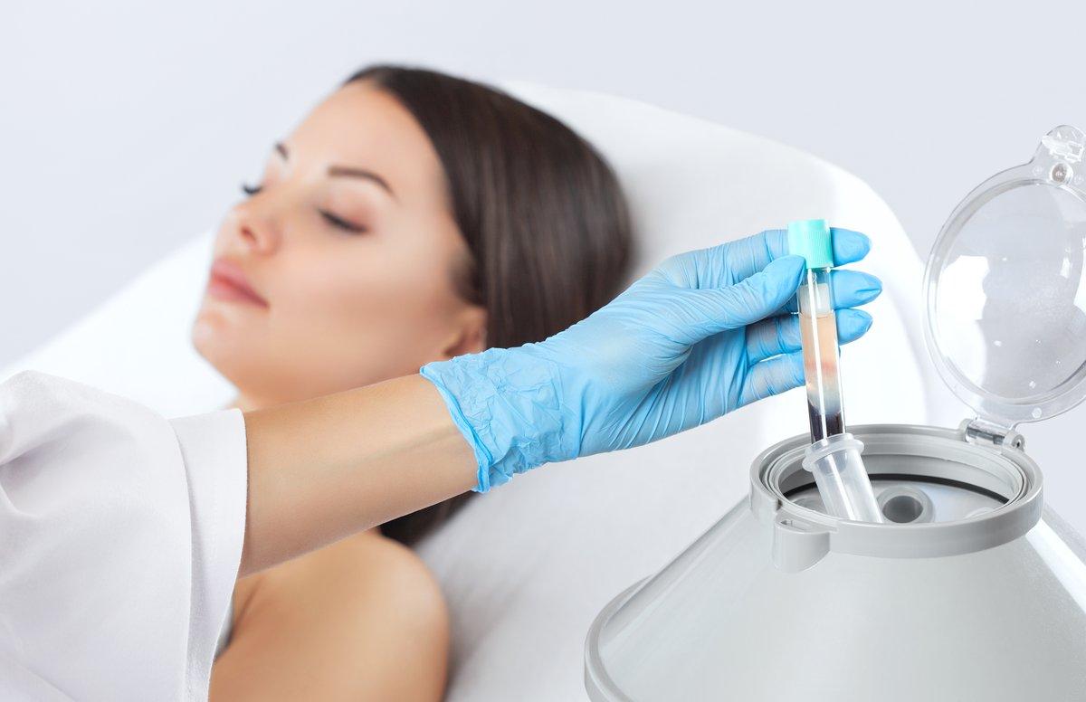 Prp терапия regenlab – новая методика омоложения лица в томске