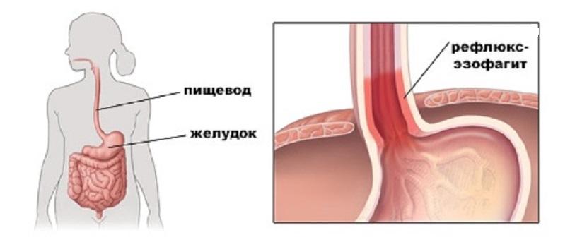 Гастроэзофагеальная рефлюксная болезнь: симптомы и лечение | справочник заболеваний helzy
