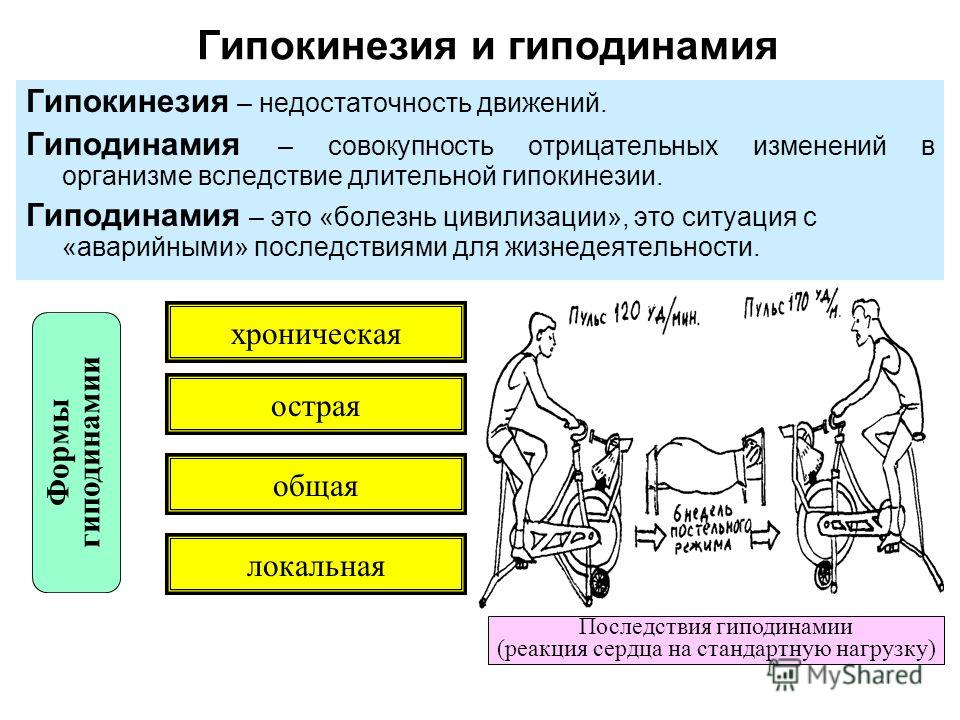 Что такое гиподинамия (гипокинезия)