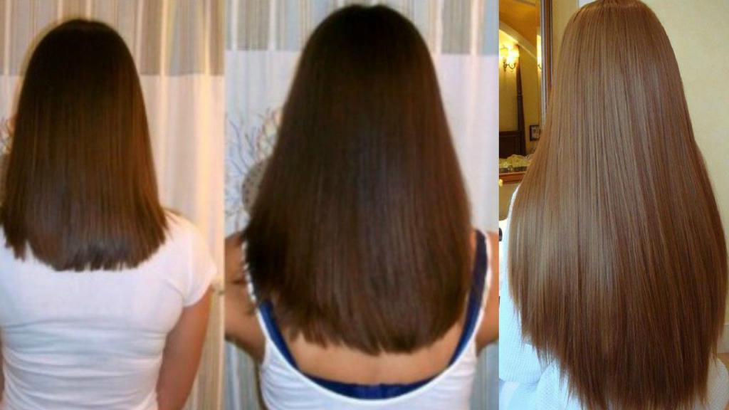 Миноксидил: отзывы женщин и мужчин, цена в аптеке, инструкция по применению для волос, побочные эффекты - medside.ru