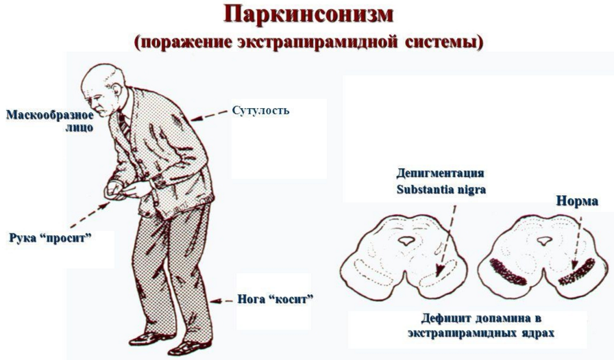 Болезнь паркинсона: симптомы и признаки, причины возникновения и лечение