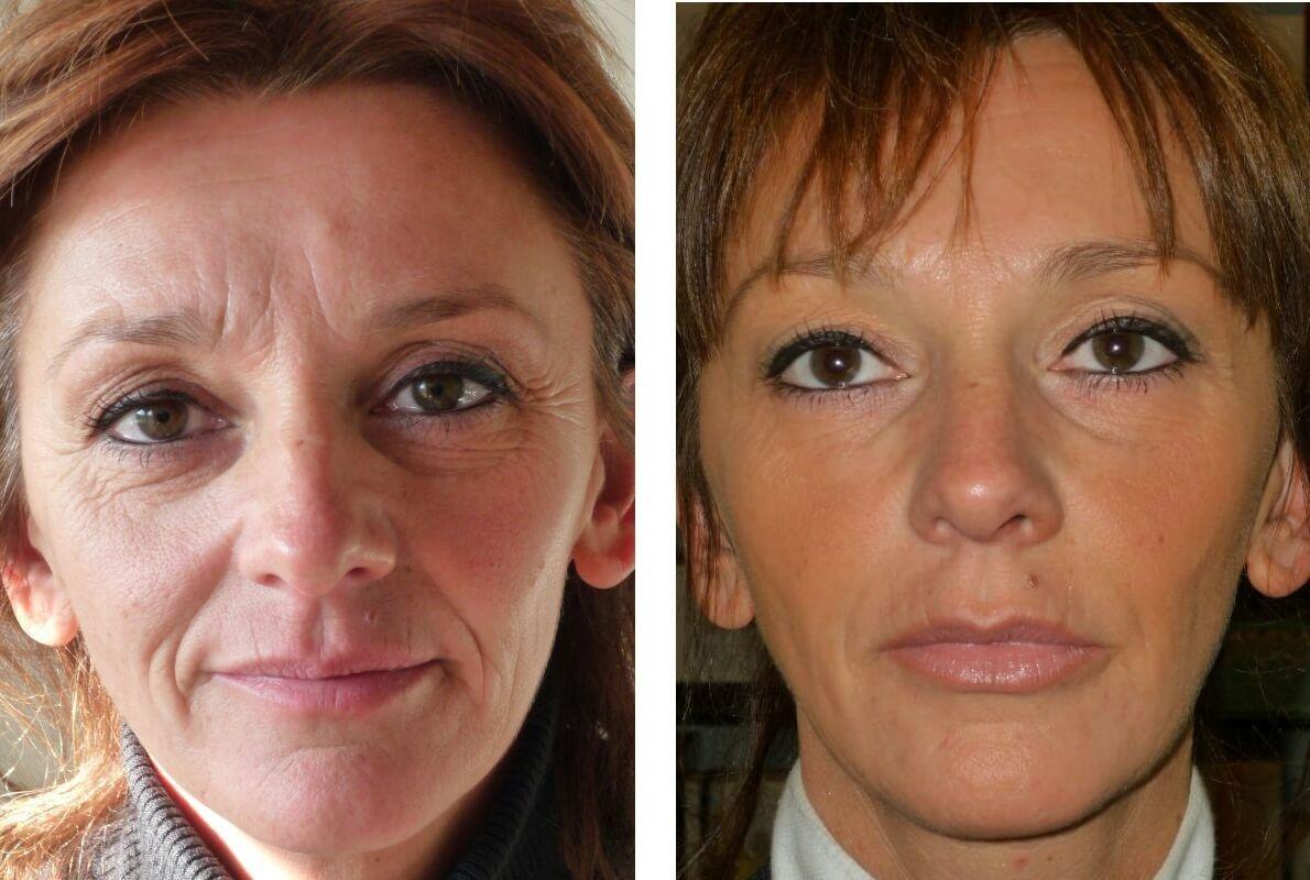 Коллагенарий: отзывы о светотерапии | косметология для чайников