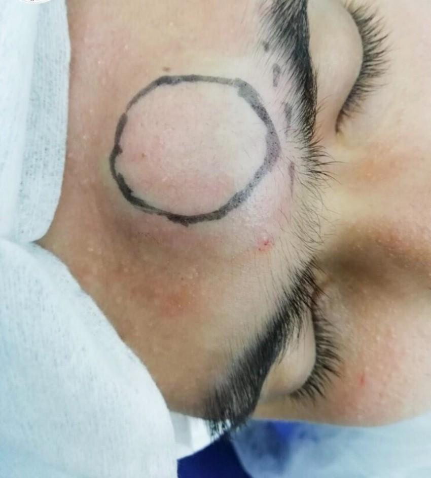 Атерома: лечение без операции в домашних условиях