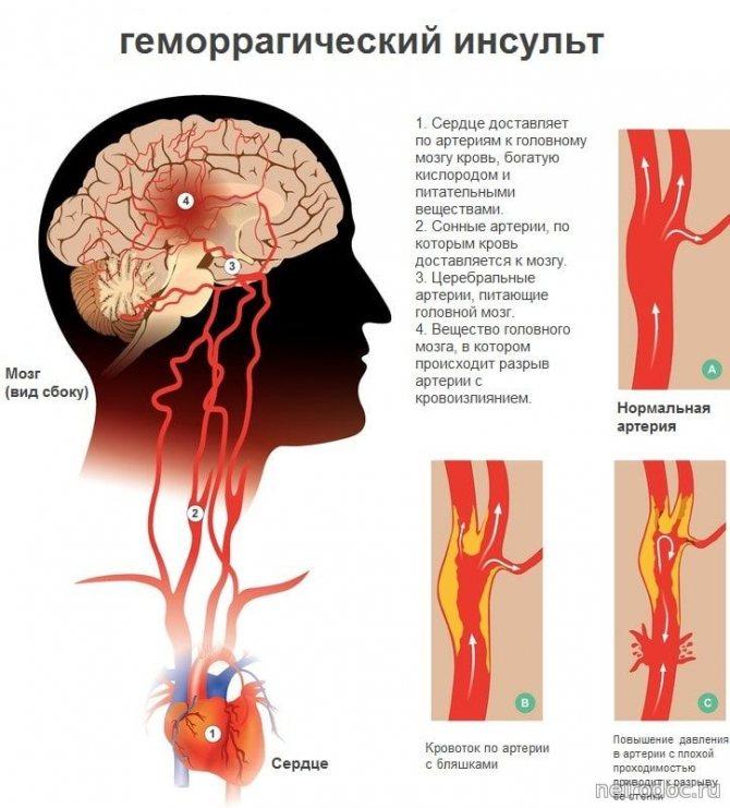Что такое ишемический инсульт головного мозга: причины и лечение