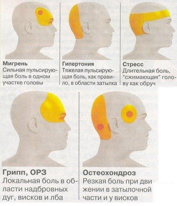 Мигрень. симптомы, причины, лечение.
