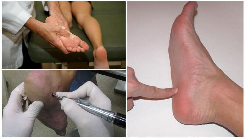 Шипица на ноге: фото, как вывести, чем лечить в домашних условиях