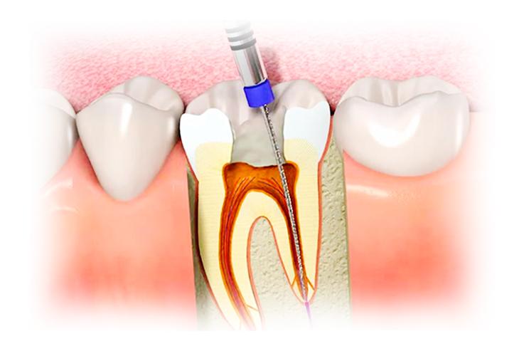 Пульпит зуба: стоматолог рассказала о симптомах и методах лечения