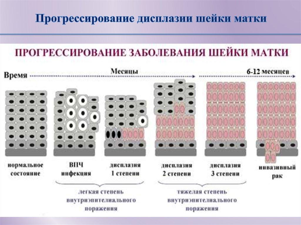 Дисплазия шейки матки 2 (второй) степени - лечение, нужна ли операция