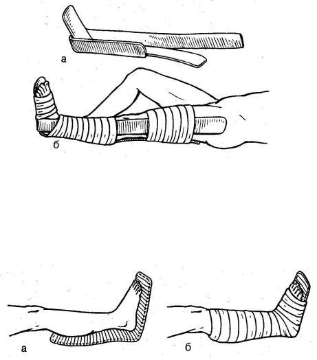 Иммобилизация при переломах костей
