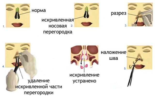 Исправление носовой перегородки лазером