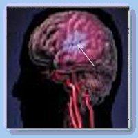 Церебральный атеросклероз: как развивается, симптомы, диагностика, как лечить, прогноз