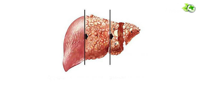 Вирусный цирроз печени: этиология, симптомы и лечение