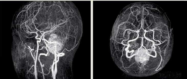 Методика и виды ангиографии сосудов головного мозга
