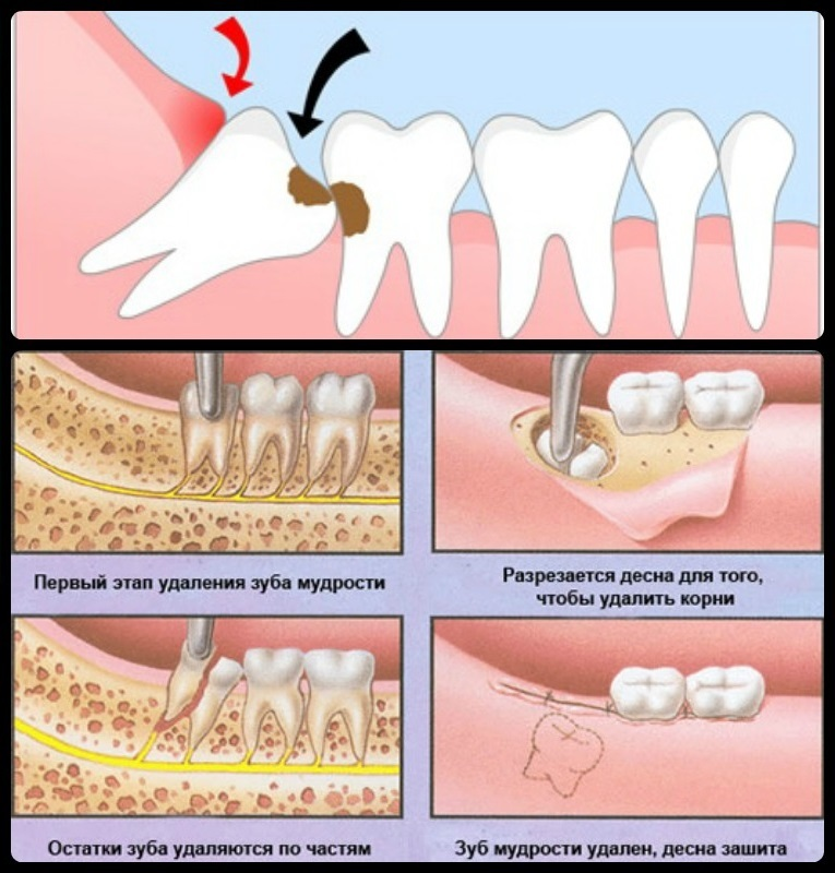 Что делать, когда растет зуб мудрости: симптомы, способы облегчения состояния, необходимость удаления