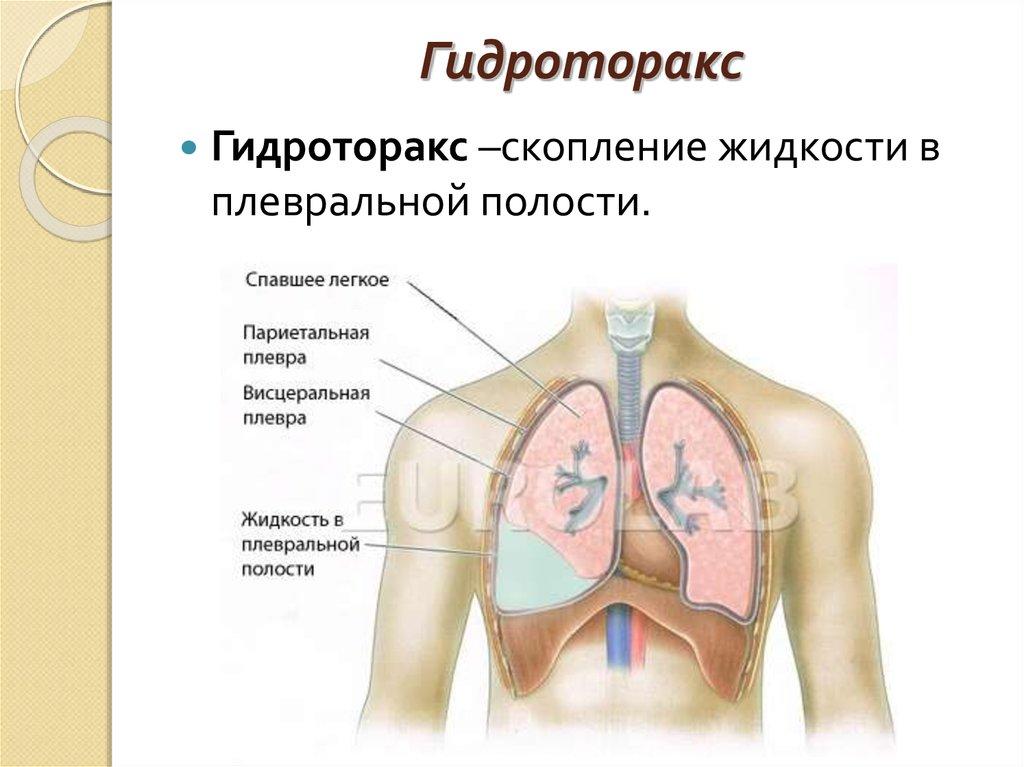 Гидроторакс легкого: причины, симптомы, диагностика и методы лечения