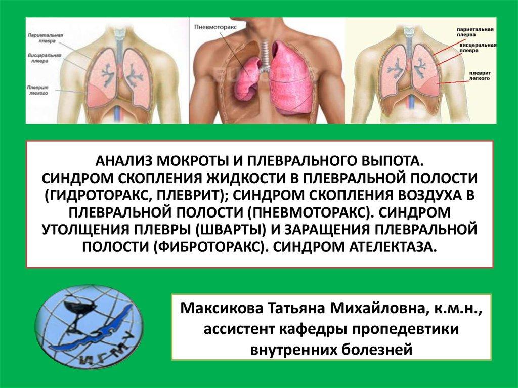 Гидроторакс легких: симптомы и методы лечения