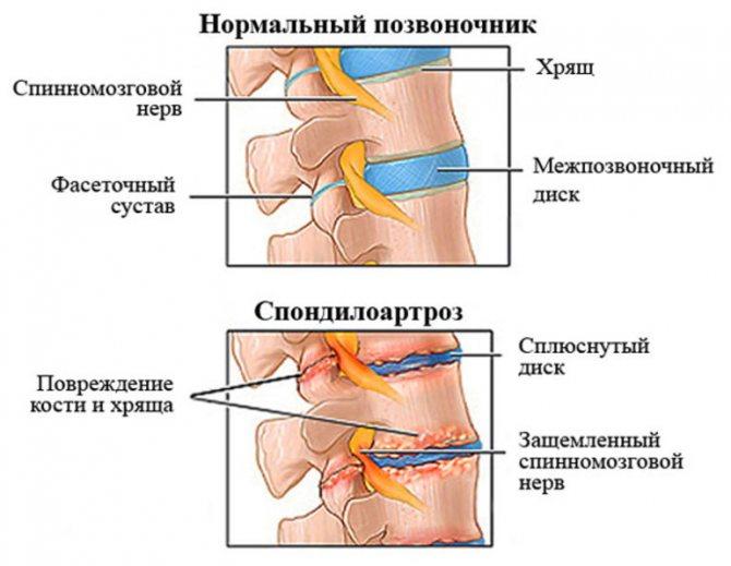 Спондилеза шейного отдела позвоночника