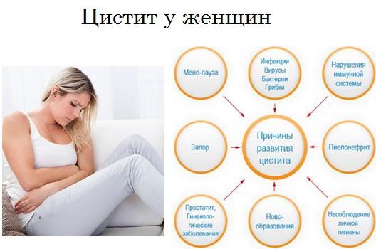 Цистит у женщин: симптомы, лечение, препараты, причины, признаки, таблетки антибиотики, лечение в домашних условиях