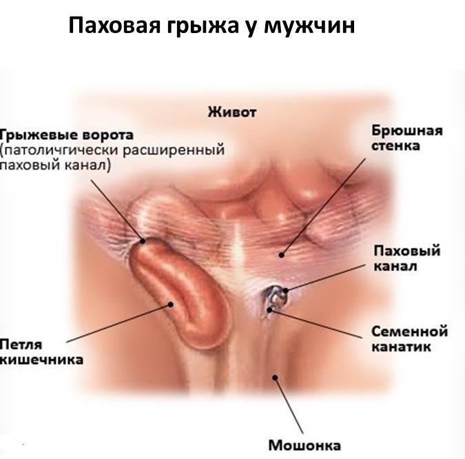 Прямая паховая грыжа : симптомы и лечение прямой паховой грыжи | компетентно о здоровье на ilive
