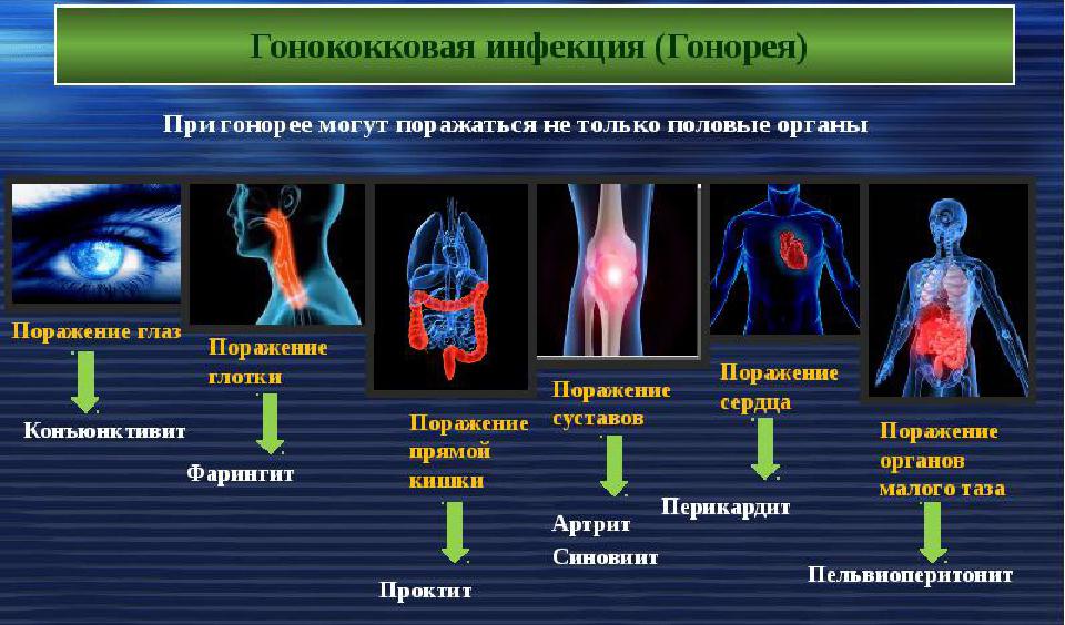 Симптомы гонореи у мужчин, ее причины, лечение и осложнения