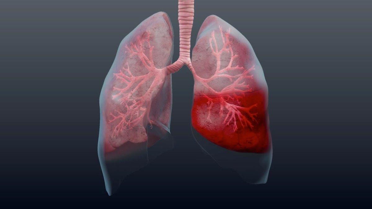 Белая мокрота при кашле у взрослых без температуры: причины прозрачной слизи