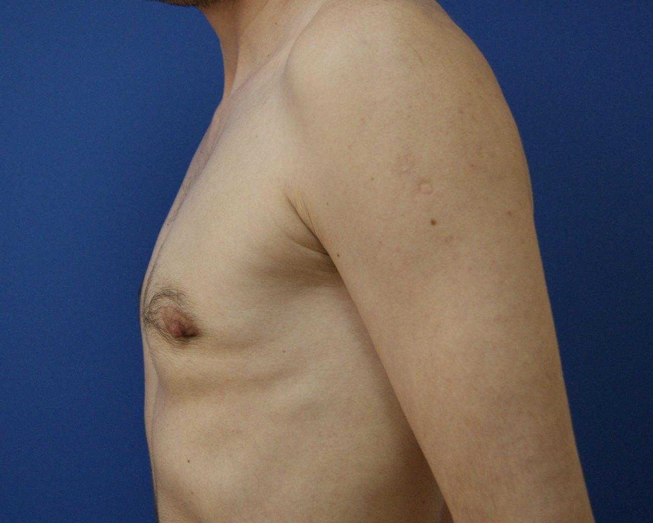 Гинекомастия у женщин и девочек: что это такое, симптомы, диагностика и лечение