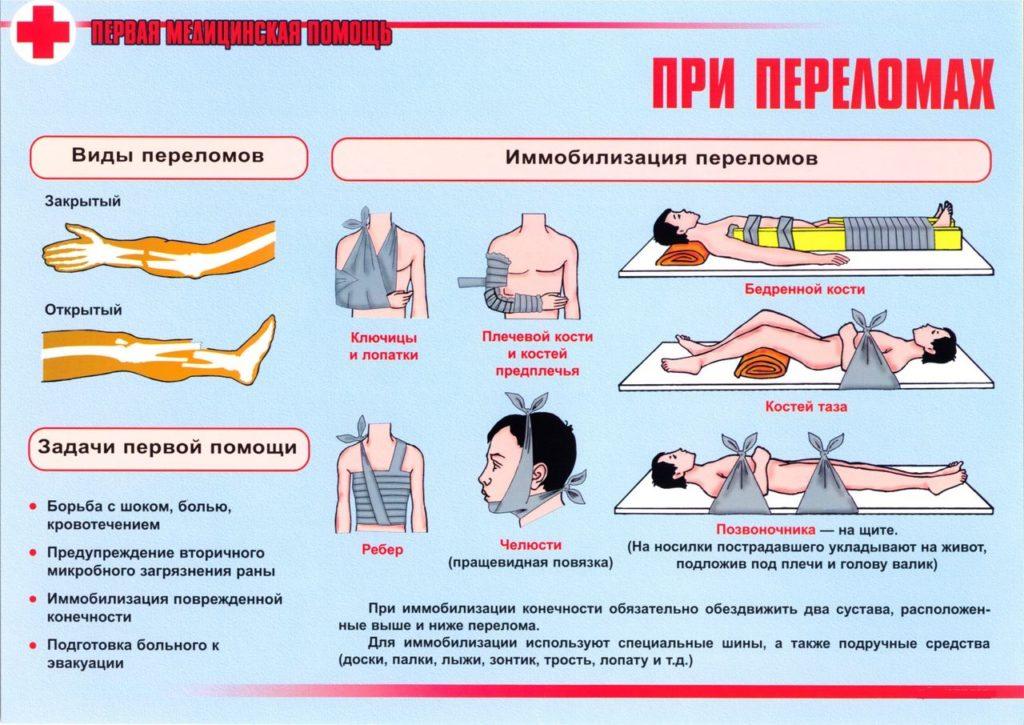 Закрытый перелом: признаки и симптомы травмы, помощь и лечение