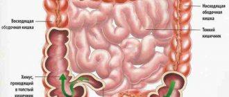 Атония кишечника — заболевание, которое можно предотвратить