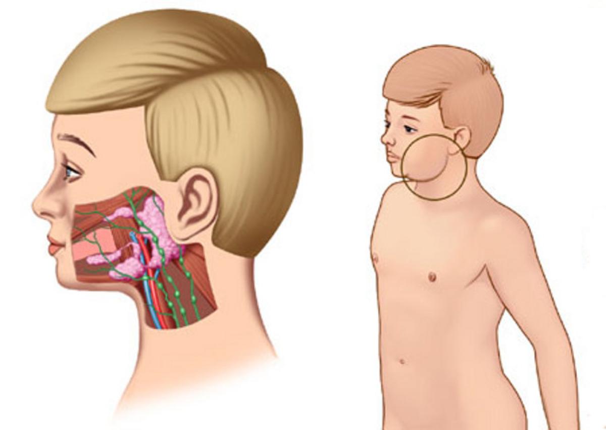 Паротит - симптомы, лечение, профилактика, прививка от паротита