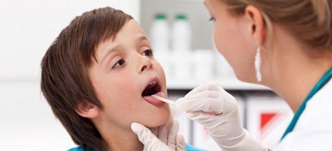 Как проявляется вирус эпштейна-барр у детей?