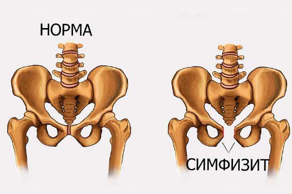 Симфизит: симптомы и лечение, признаки симфизита при беременности | мед.консультант - здоровье on-line