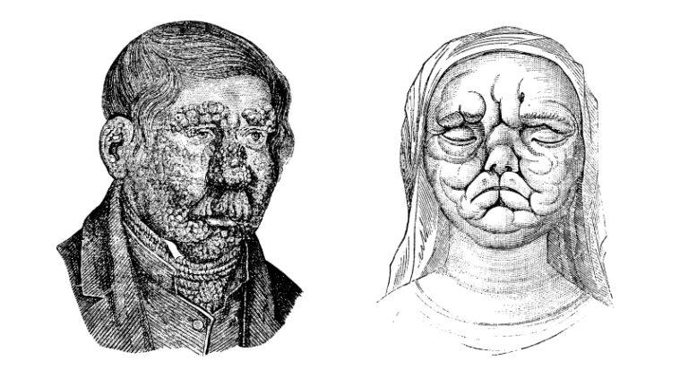Чем болели и как лечились в средневековье? - все ответы на top-voprosov.ru