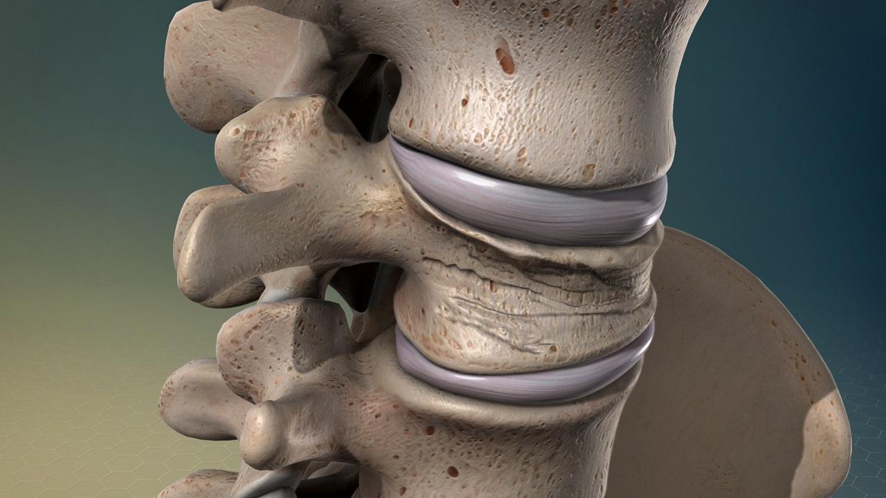 Компрессионный перелом позвоночника: симптомы и лечение