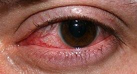 Кератит: симптомы и лечение у взрослых и детей, фото
