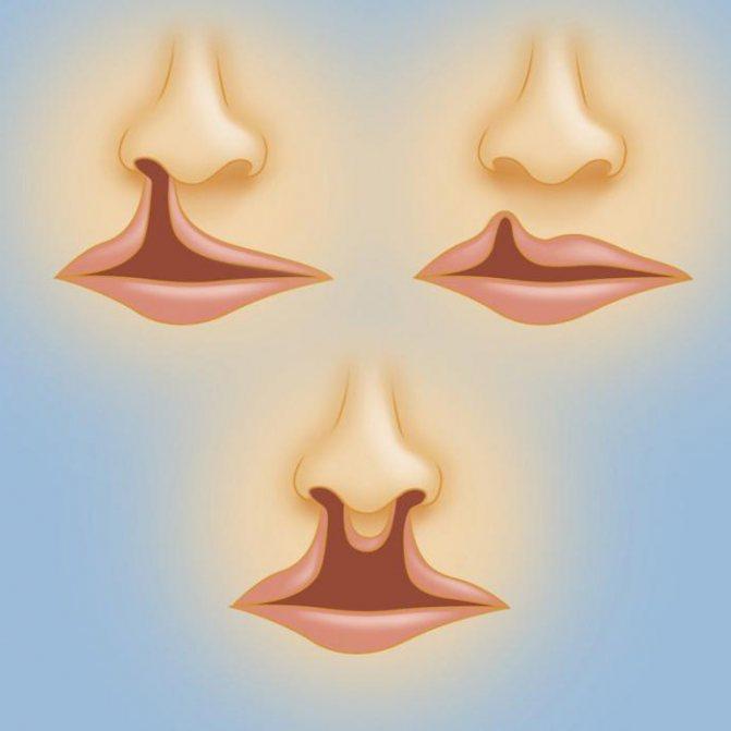 Заячья губа: причины, симптомы, диагностика и лечение