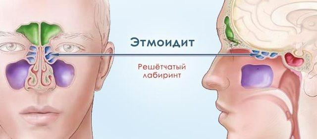 Этмоидит - что это такое, причины, симптомы, лечение, прогноз, диагностика